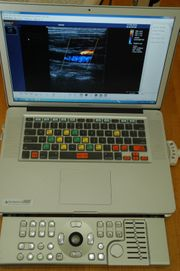 Terason T3000 MacBook Pro mit